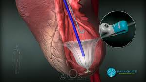 CardioKinetix reports meta-analysis study results of ...