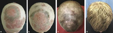 patient-baldness-before-and-after-treatment